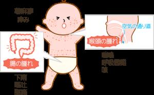 赤ちゃんのアレルギー症状