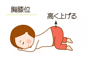 逆子体操1、胸膝位