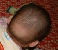 乳児期後頭部脱毛